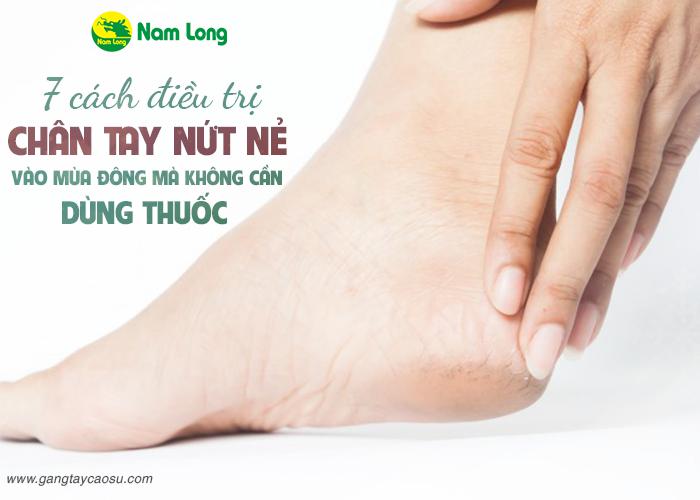 7 cách điều trị chân tay nứt nẻ vào mùa đông mà không cần dùng thuốc-1