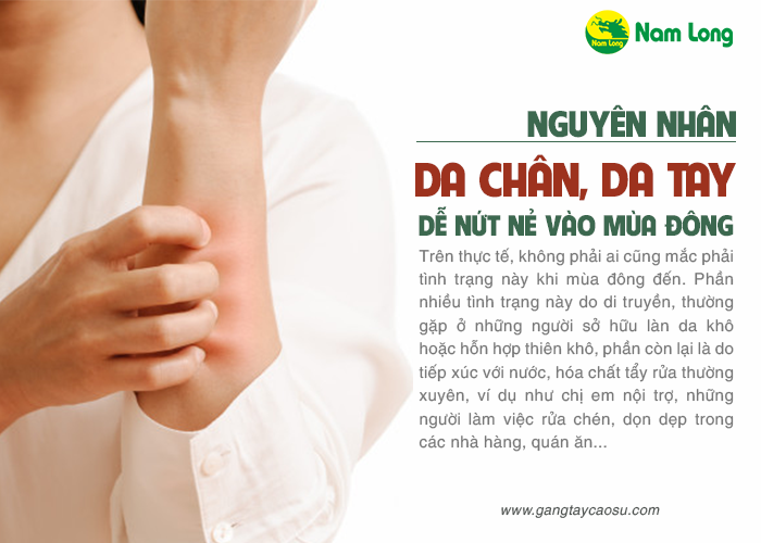 nguyên nhân gây nứt, nẻ da tay do đâu và cách điều trị nứt nẻ da tay