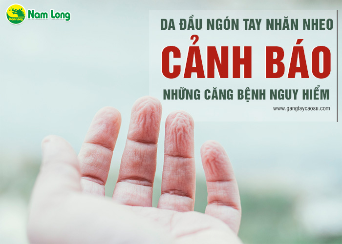 Da đầu ngón tay nhăn nheo, cảnh báo những căn bệnh nguy hiểm-1