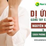 Dị ứng găng tay cao su: Nguyên nhân và cách phòng tránh