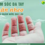 Chăm sóc da tay nhăn nheo khi phải ngâm nước quá lâu