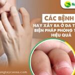 Các bệnh ngoài da ở da tay và biện pháp phòng tránh hiệu quả
