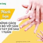Mách bạn những cách loại bỏ vết chai sần trên tay sau 1 tuần