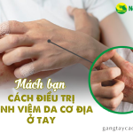 Mách bạn cách điều trị bệnh viêm da cơ địa ở tay