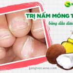 Mách bạn bí quyết trị nấm móng tay bằng dầu dừa hiệu quả bất ngờ