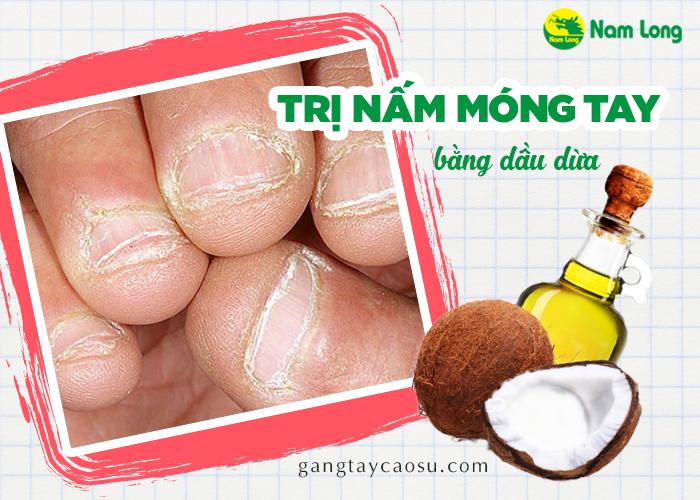 Mách bạn bí quyết trị nấm móng tay bằng dầu dừa hiệu quả bất ngờ (1)