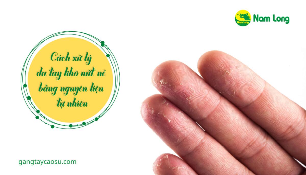 Cách xử lý da tay khô nứt nẻ bằng những nguyên liệu tự nhiên-01