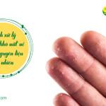 Cách xử lý da tay khô nứt nẻ bằng những nguyên liệu tự nhiên