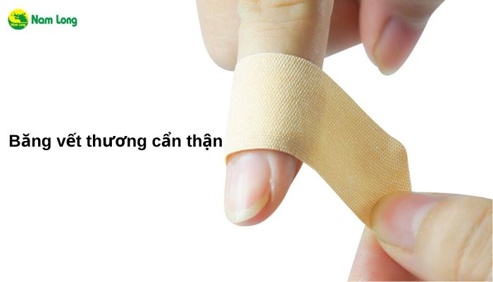 Cách xử lý khi bị đứt tay tại nhà mà ai cũng cần phải lưu lại (1)