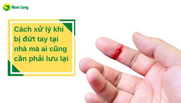 Cách xử lý khi bị đứt tay tại nhà mà ai cũng cần phải lưu lại (4)