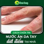 Cách chữa nước ăn da tay dứt điểm tại nhà